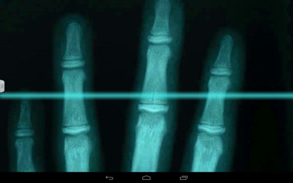 xray scanner apps android 2