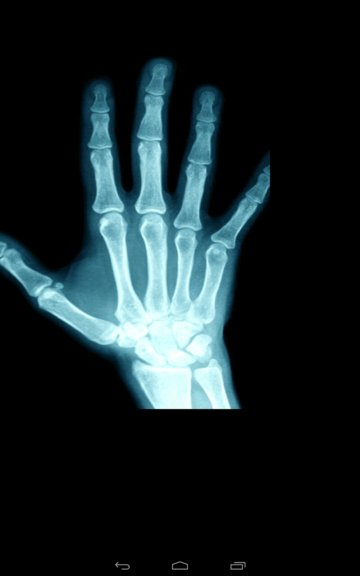 xray scanner apps android 3