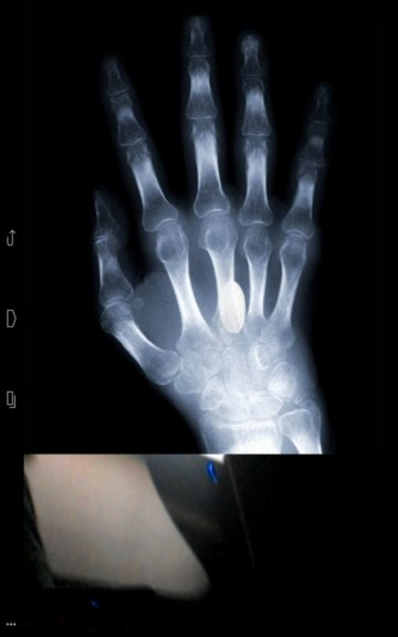 xray scanner apps android 5