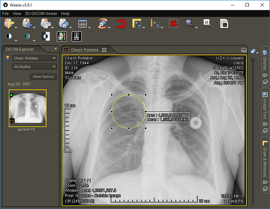 Weasis free x-ray viewer software