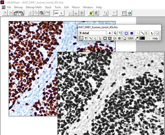 Free Software to Analyse Immunocytochemistry Images Cells&Maps